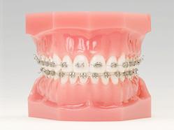 山本歯科医院は矯正治療を得意としておりません