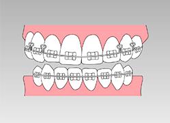 それぞれの患者さまに応じた矯正歯科をご紹介したいと思っています。