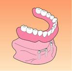 総入れ歯の固定