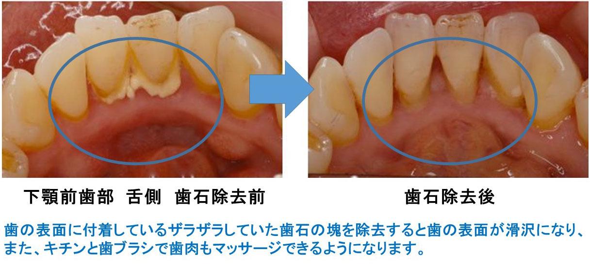 予防歯科 PMTC(Professional Mechanical Tooth Cleaning)