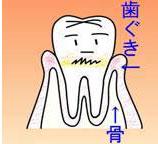 ① 歯肉炎