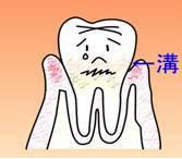 ② 歯肉炎(軽度)