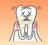 ③ 歯肉炎(中等度)