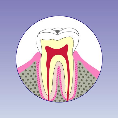 C1(初期虫歯)